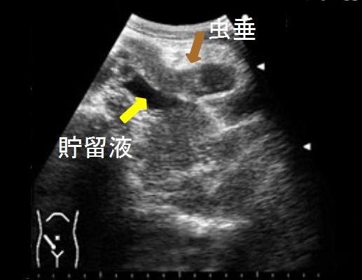 腹部エコー(超音波)画像と疾患の見方【消化管編】