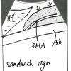 腹部エコー(超音波)サイン集③