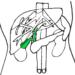 【初心者向け】腹部エコー(超音波)画像と疾患の見方~胆道系(胆嚢)編~